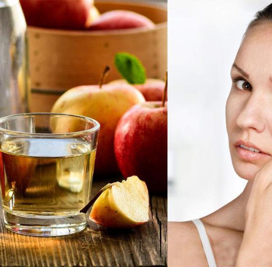 Խնձորի քացախը կօգնի ձեզ վերացնել դեմքի վրայի պզուկները և դրանցից առաջացած հետքերը