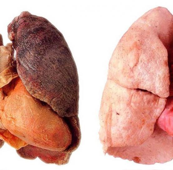 Բնական միջոց, որը կմաքրի ձեր թոքերը։ Կապ չունի ծխող եք, թե ոչ, մաքրեք այն