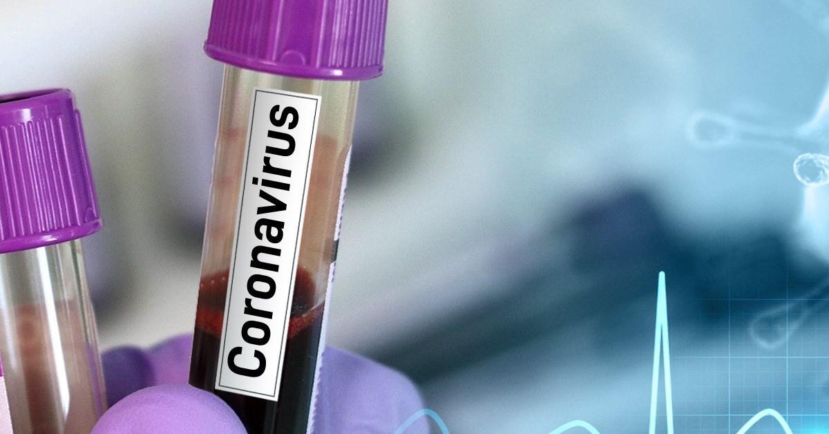 29․03․2020 11-00-ի դրությամբ կորոնավիրուսով վարակվածների թիվը հետևյալն է