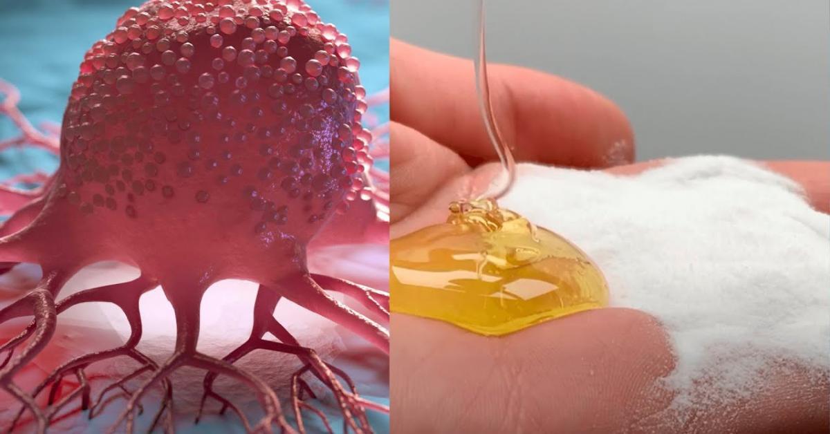 Քաղցկեղը կարող եք բուժել մեղրի և սոդայի օգնությամբ․ Ահա թե ինչպես